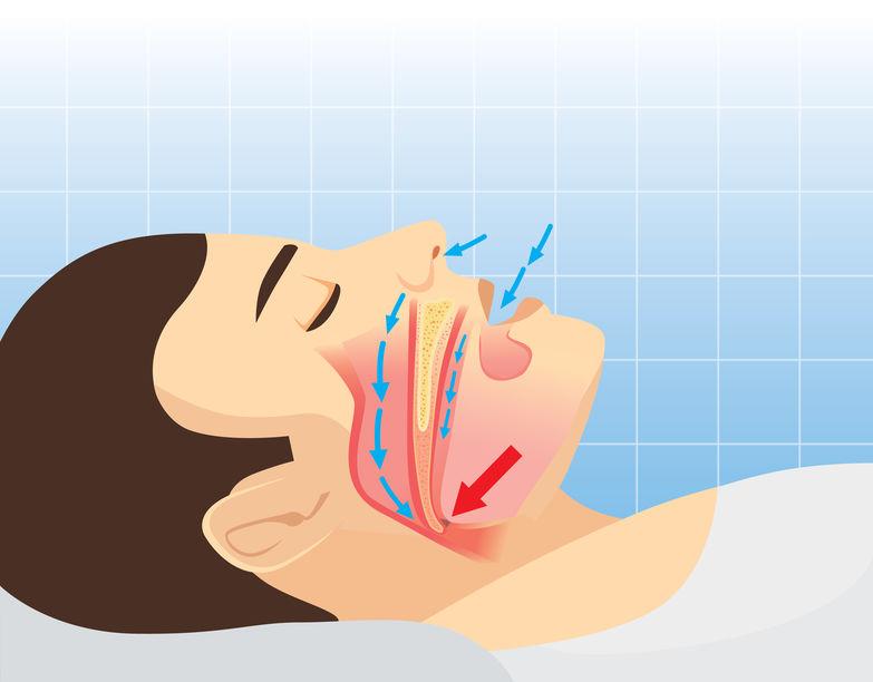 """Il dentista: la """"sentinella"""" per i disturbi del sonno"""