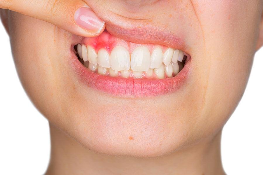 Diabete e gengive, una associazione che mette a rischio il sorriso